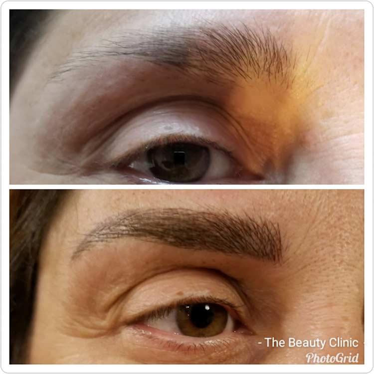 Microblading - Eyebrow Procedure Reviewed